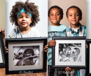 Фото: Дутуу төрсөн хүүхдүүдийн нярай үеийн зураг