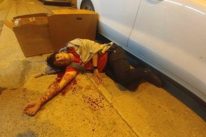 Хонконгийн эсэргүүцлийн удирдагч Жимми Шам халдлагад өртжээ