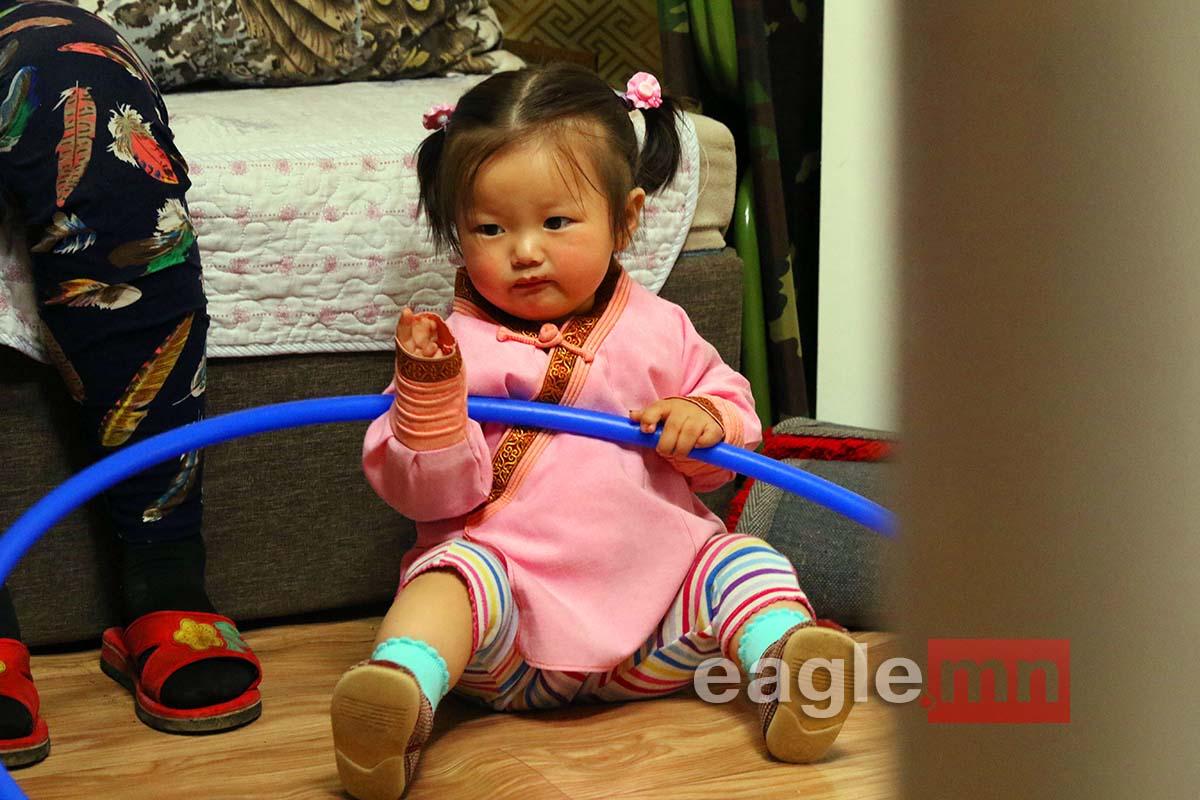 СУРВАЛЖЛАГА: Хоёр хөлөндөө дөрөвхөн хуруутай бяцхан охин Ш.Буянжаргалынд өнжлөө